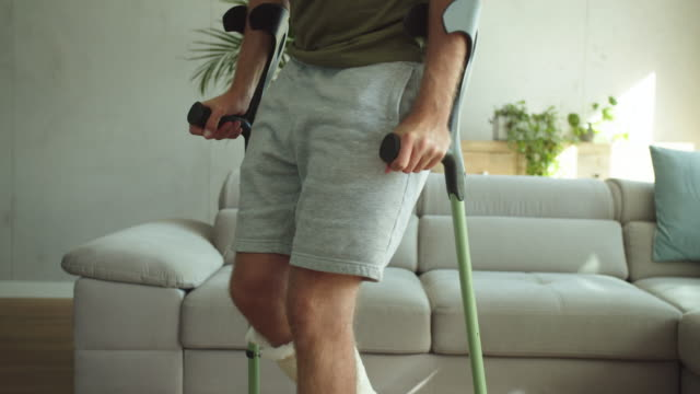 Young man with broken leg at home Young man with broken leg in plaster cast walking with crutches in living room. Unrecognizable person. crutch stock videos & royalty-free footage