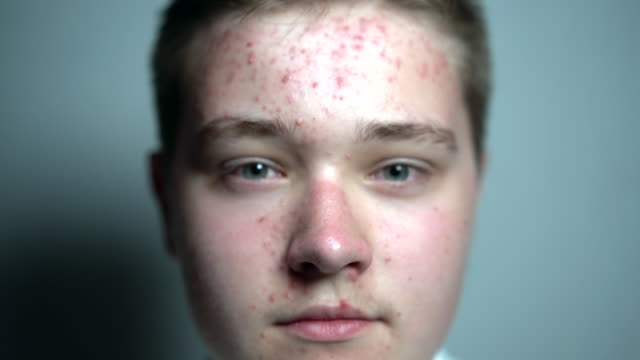 Young man with dermatology skin problems looking at the camera in the studio on the grey background. Close up Young man with dermatology skin problems looking at the camera in the studio on the grey background. Close up. dermatology stock videos & royalty-free footage