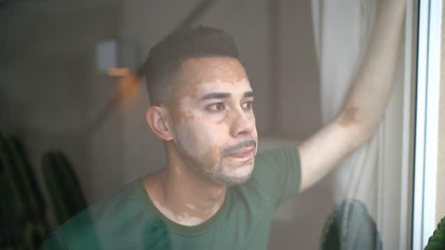Young man with vitiligo looking through window video
