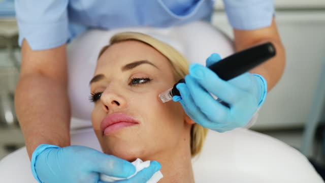 Young woman at mesotherapy treatment Microneedle mesotherapy. Beautiful blond woman receiving microneedling rejuvenation treatment at beauty clinic. beautician stock videos & royalty-free footage