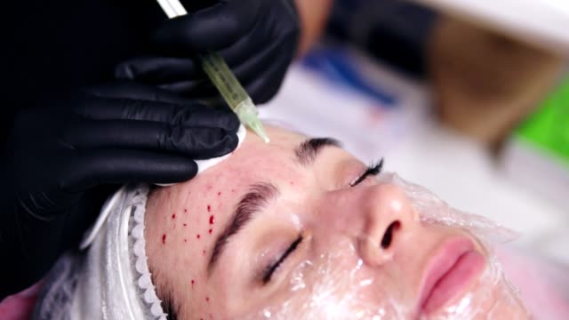 Young woman is lying on the couch while professional comsetologist in gloves is making multiple injections in woman's forehead during mesotherapy. Biorevitalization and face lifting video