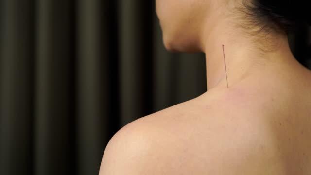 ung kvinna som genomgår akupunktur behandling på skuldra - acupuncture bildbanksvideor och videomaterial från bakom kulisserna