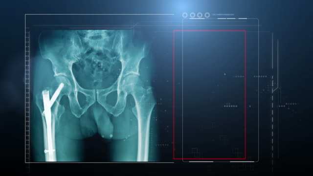 Y-strut hip fixation in blue tone footage Y-strut hip fixation in blue tone footage, 4K hip x-ray with close up to fixation device and red hight light at hip scandal abc stock videos & royalty-free footage